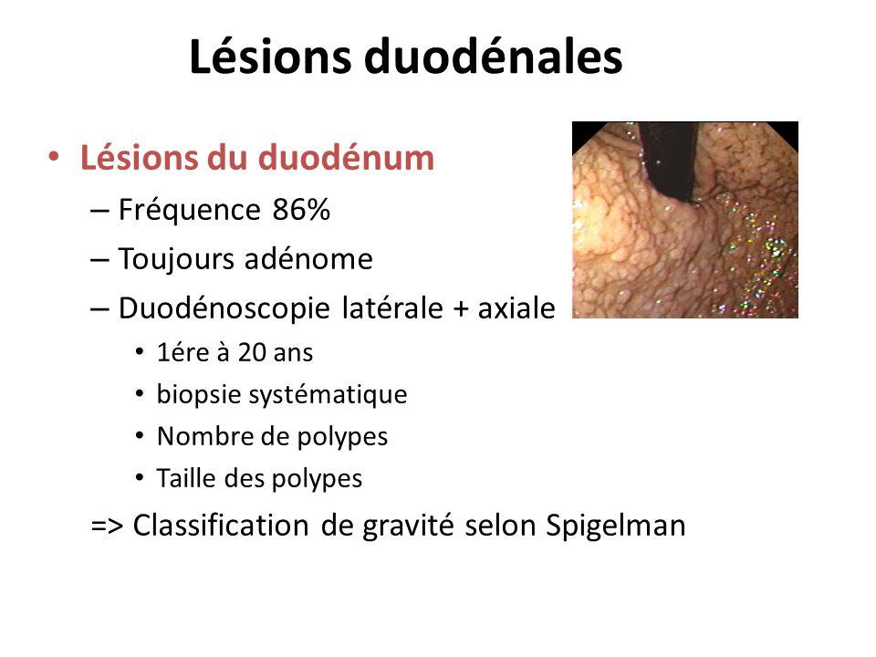 Lésions duodénales Lésions du duodénum – Fréquence 86% – Toujours adénome – Duodénoscopie latérale + axiale 1ére à 20 ans biopsie systématique Nombre
