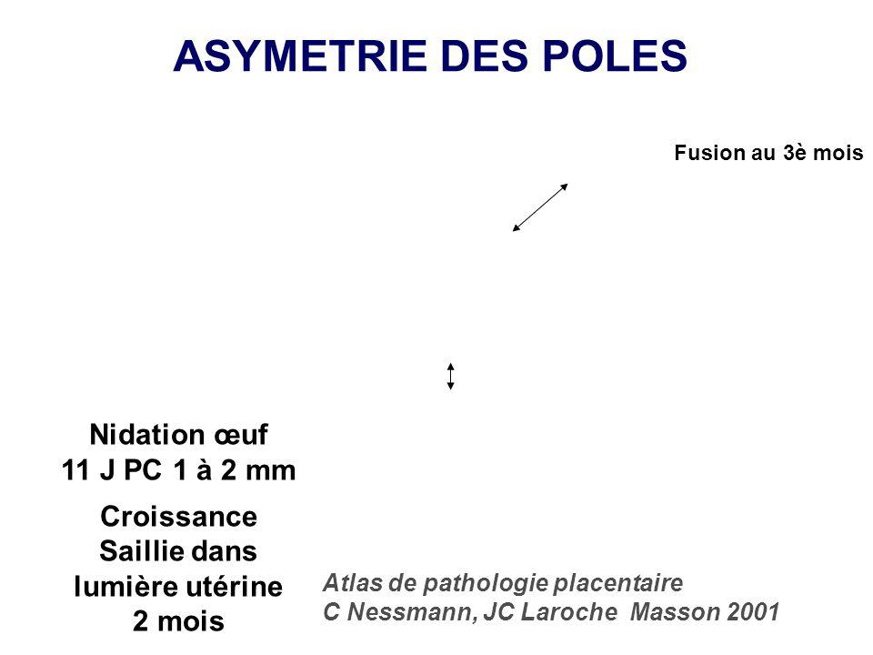 ASYMETRIE DES POLES Nidation œuf 11 J PC 1 à 2 mm Croissance Saillie dans lumière utérine 2 mois Atlas de pathologie placentaire C Nessmann, JC Laroch