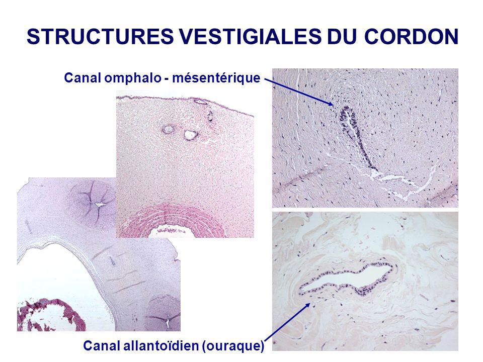 STRUCTURES VESTIGIALES DU CORDON Canal omphalo - mésentérique Canal allantoïdien (ouraque)