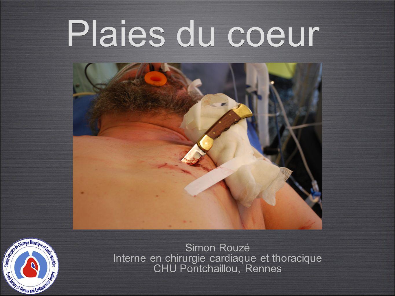 Plaies du coeur Simon Rouzé Interne en chirurgie cardiaque et thoracique CHU Pontchaillou, Rennes Simon Rouzé Interne en chirurgie cardiaque et thorac