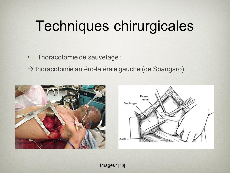 Techniques chirurgicales Thoracotomie de sauvetage : thoracotomie antéro-latérale gauche (de Spangaro) Images : [40]