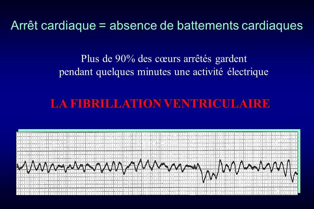 Arrêt cardiaque = absence de battements cardiaques Plus de 90% des cœurs arrêtés gardent pendant quelques minutes une activité électrique LA FIBRILLAT