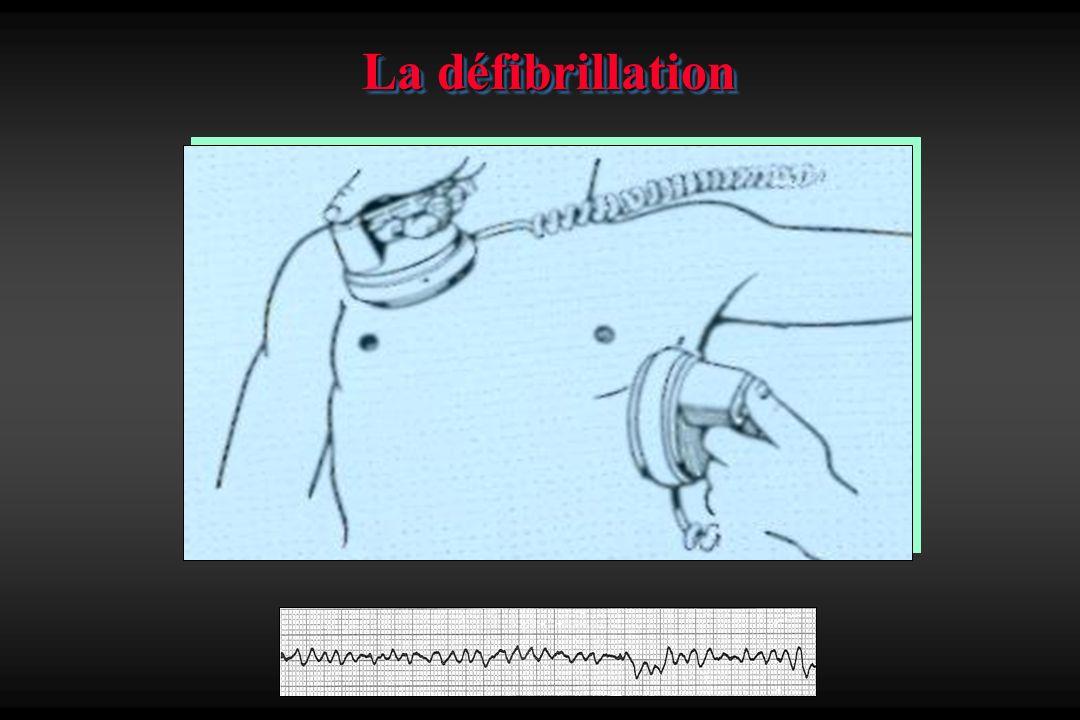 La défibrillation