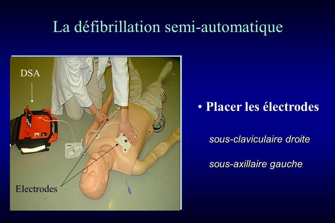Placer les électrodes DSA Electrodes La défibrillation semi-automatique sous-claviculaire droite sous-axillaire gauche