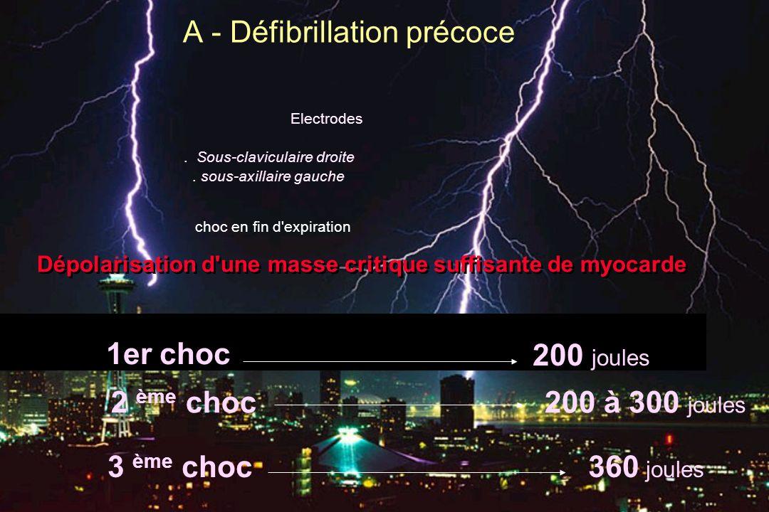 A - Défibrillation précoce choc en fin d'expiration Dépolarisation d'une masse critique suffisante de myocarde Electrodes. Sous-claviculaire droite. s