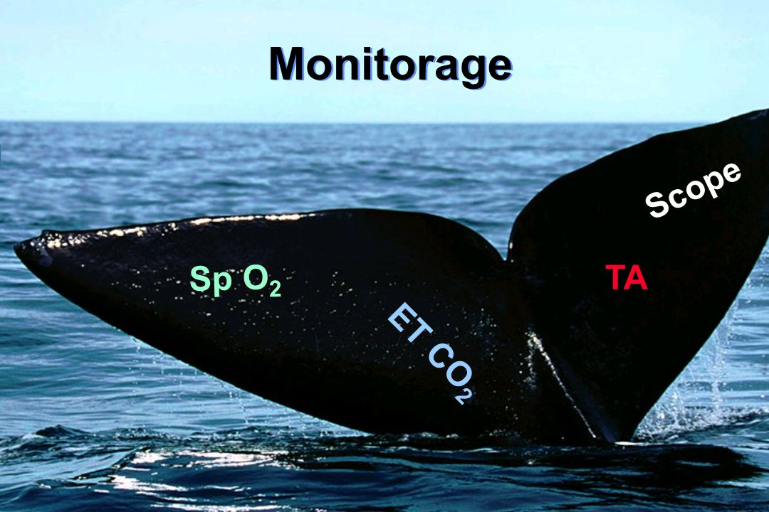 Monitorage Scope ET CO 2 TA Sp O 2