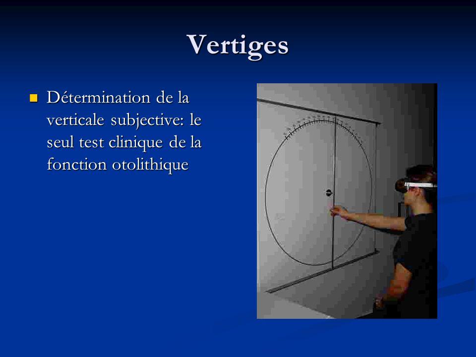 Vertiges Détermination de la verticale subjective: le seul test clinique de la fonction otolithique Détermination de la verticale subjective: le seul