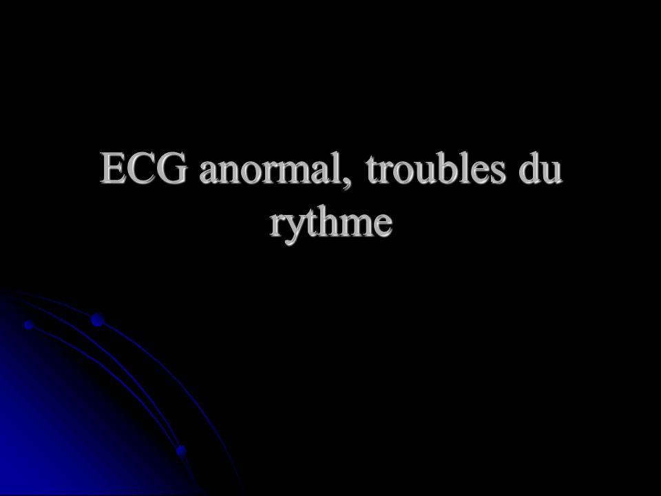 ECG anormal, troubles du rythme