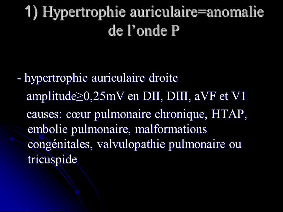 1) Hypertrophie auriculaire=anomalie de londe P - hypertrophie auriculaire droite amplitude0,25mV en DII, DIII, aVF et V1 amplitude0,25mV en DII, DIII