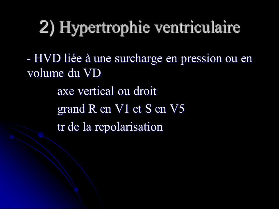 2) Hypertrophie ventriculaire - HVD liée à une surcharge en pression ou en volume du VD - HVD liée à une surcharge en pression ou en volume du VD axe