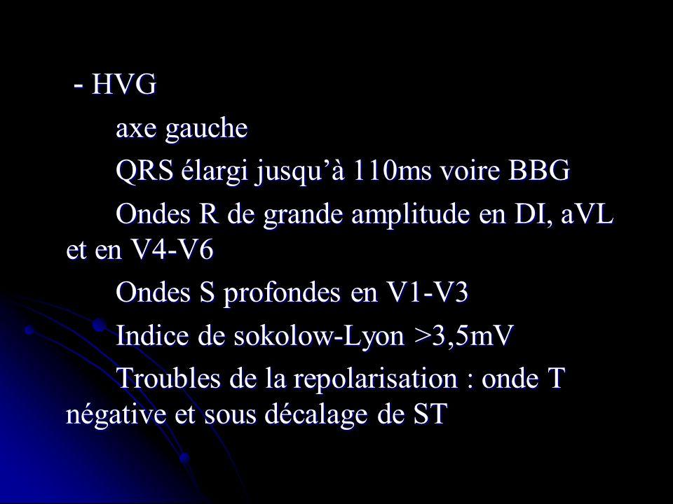 - HVG - HVG axe gauche axe gauche QRS élargi jusquà 110ms voire BBG QRS élargi jusquà 110ms voire BBG Ondes R de grande amplitude en DI, aVL et en V4-