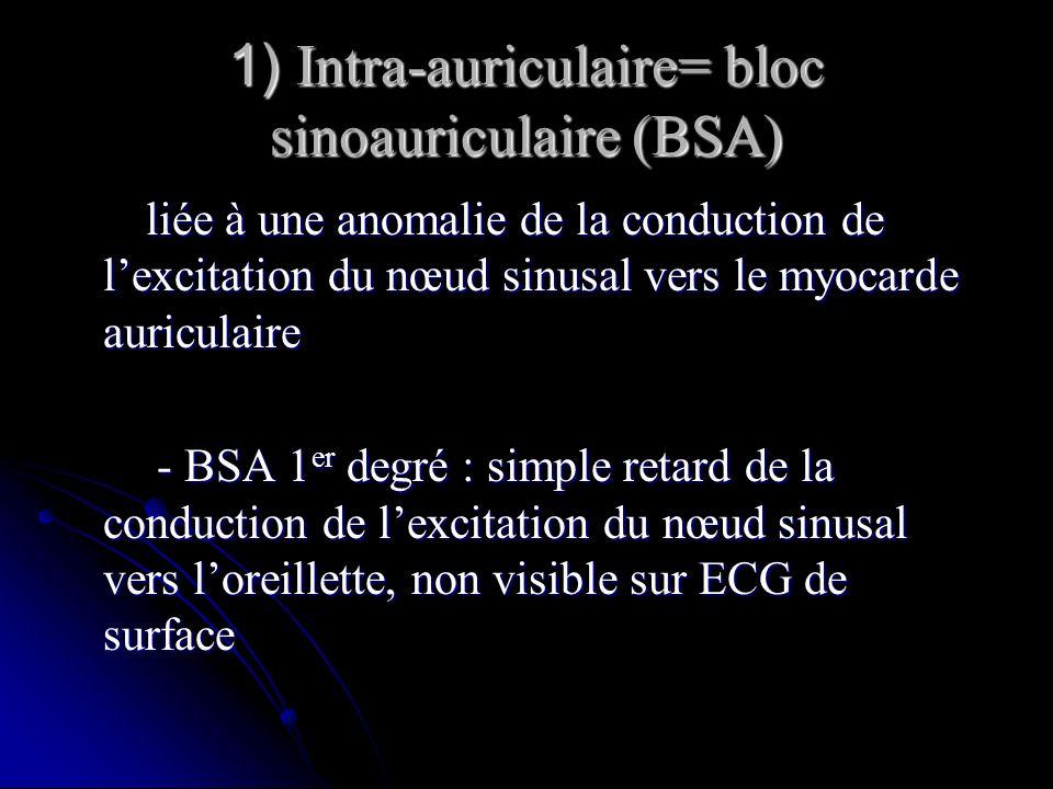 1) Intra-auriculaire= bloc sinoauriculaire (BSA) liée à une anomalie de la conduction de lexcitation du nœud sinusal vers le myocarde auriculaire liée