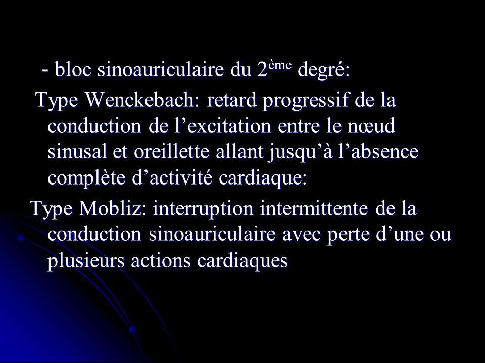 - bloc sinoauriculaire du 2 ème degré: - bloc sinoauriculaire du 2 ème degré: Type Wenckebach: retard progressif de la conduction de lexcitation entre