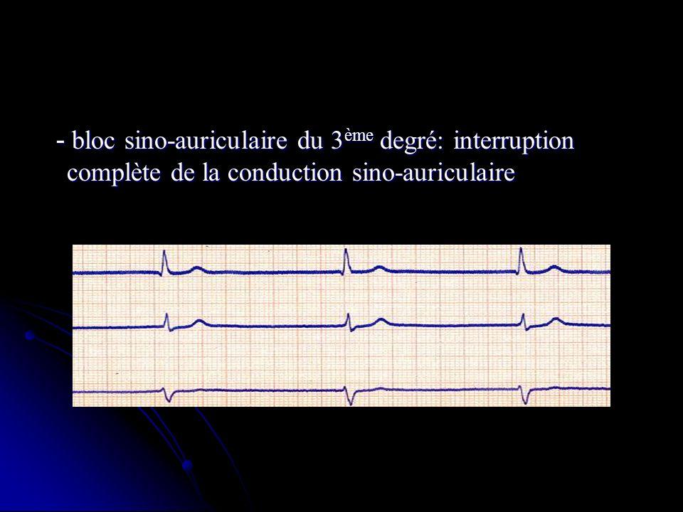 - bloc sino-auriculaire du 3 ème degré: interruption complète de la conduction sino-auriculaire - bloc sino-auriculaire du 3 ème degré: interruption c