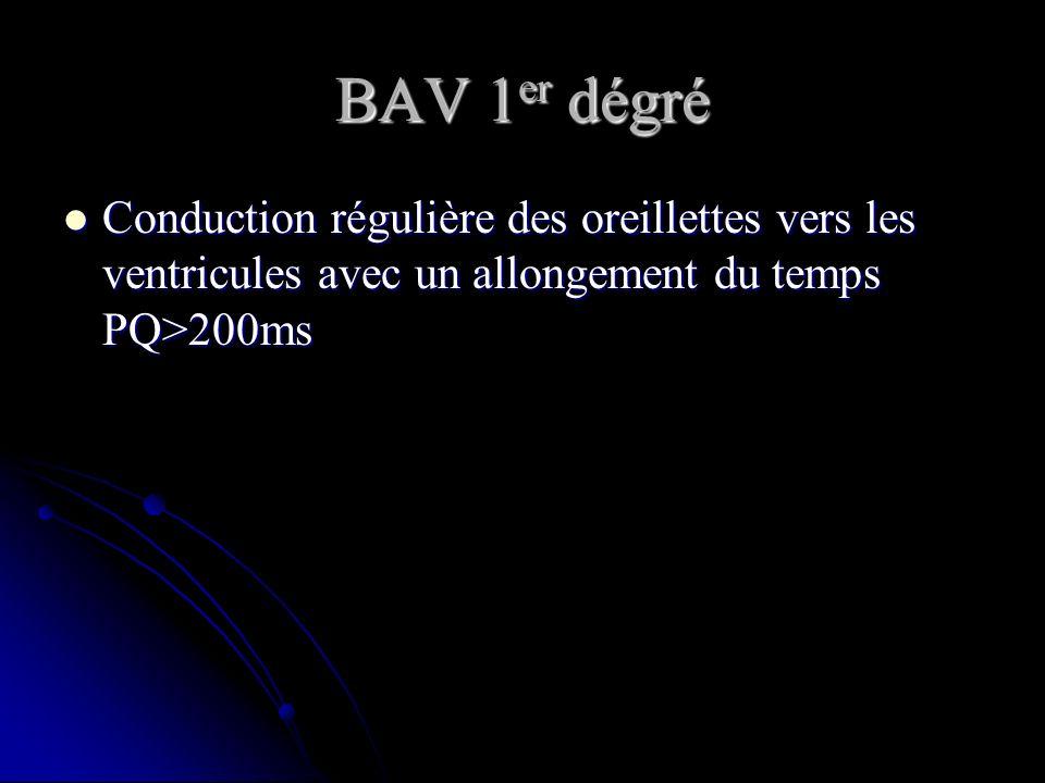 BAV 1 er dégré Conduction régulière des oreillettes vers les ventricules avec un allongement du temps PQ>200ms Conduction régulière des oreillettes ve