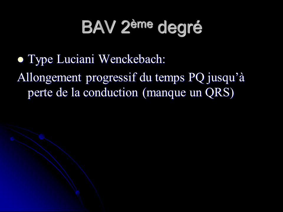 BAV 2 ème degré Type Luciani Wenckebach: Type Luciani Wenckebach: Allongement progressif du temps PQ jusquà perte de la conduction (manque un QRS)