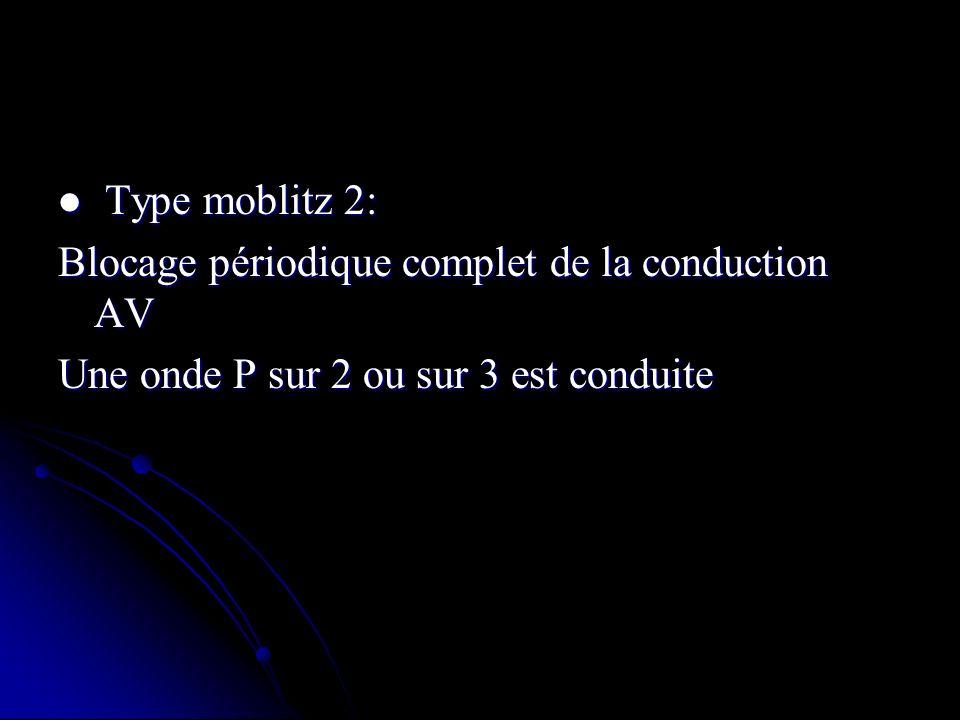 Type moblitz 2: Type moblitz 2: Blocage périodique complet de la conduction AV Une onde P sur 2 ou sur 3 est conduite