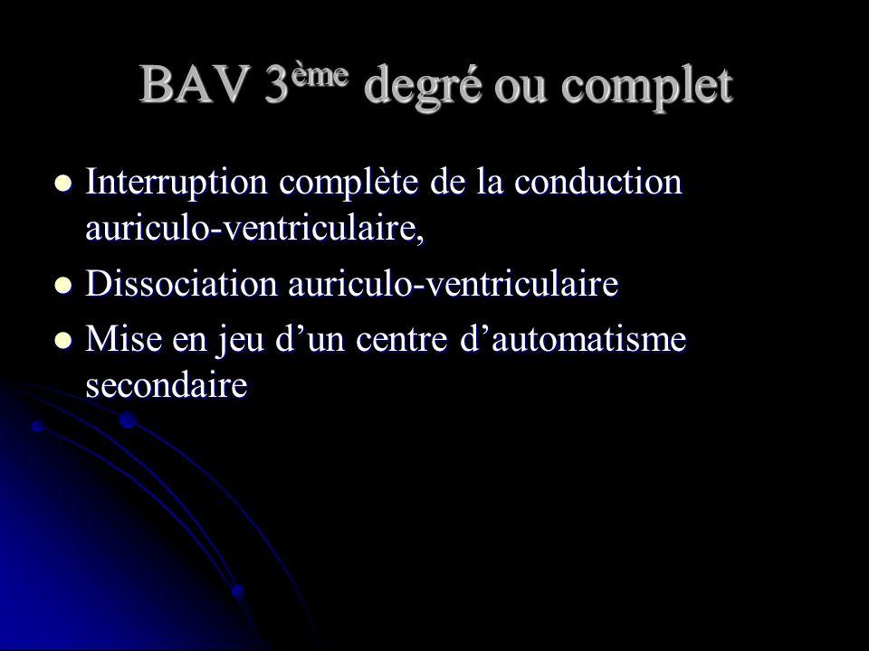 BAV 3 ème degré ou complet Interruption complète de la conduction auriculo-ventriculaire, Interruption complète de la conduction auriculo-ventriculair