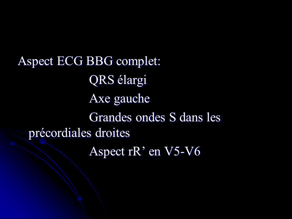 Aspect ECG BBG complet: QRS élargi QRS élargi Axe gauche Axe gauche Grandes ondes S dans les précordiales droites Grandes ondes S dans les précordiale