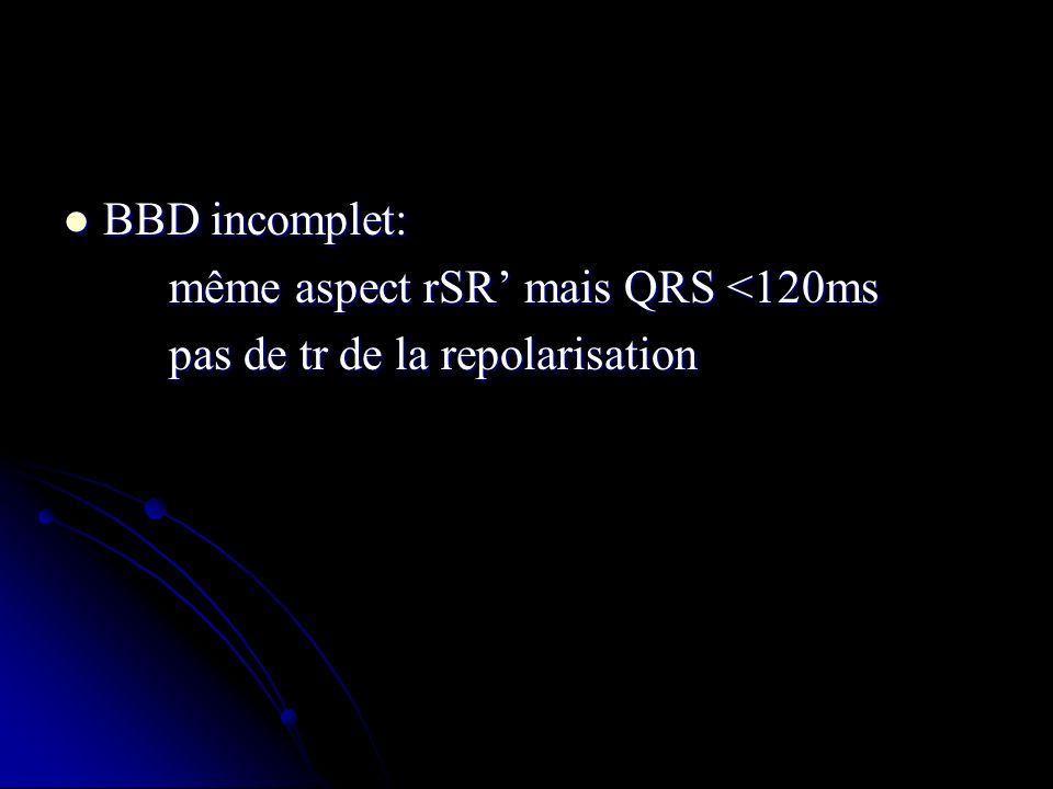 BBD incomplet: BBD incomplet: même aspect rSR mais QRS <120ms même aspect rSR mais QRS <120ms pas de tr de la repolarisation pas de tr de la repolaris