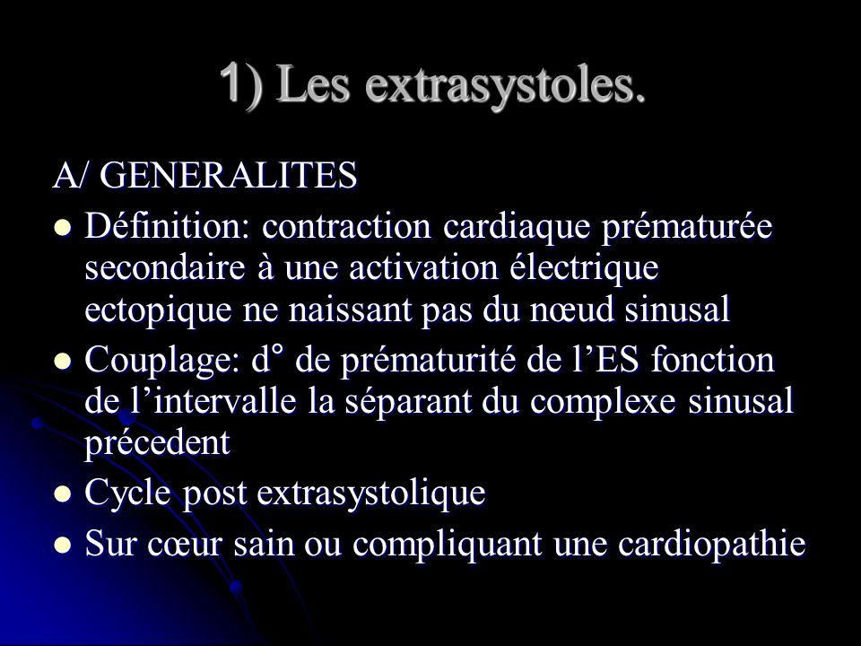 1 ) Les extrasystoles. A/ GENERALITES Définition: contraction cardiaque prématurée secondaire à une activation électrique ectopique ne naissant pas du