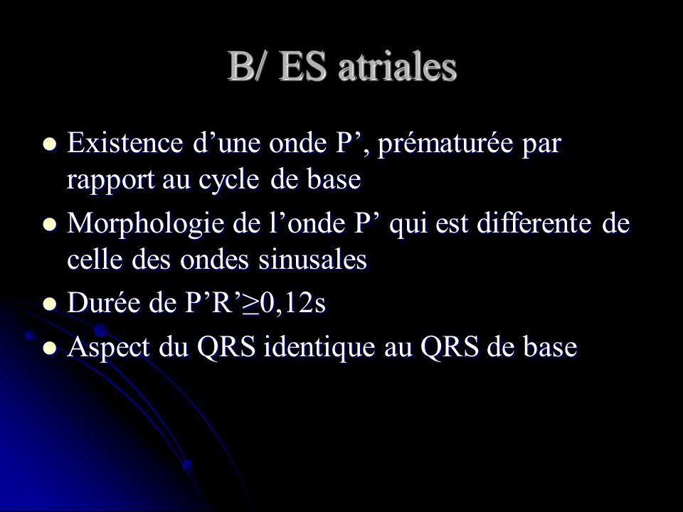 B/ ES atriales Existence dune onde P, prématurée par rapport au cycle de base Existence dune onde P, prématurée par rapport au cycle de base Morpholog