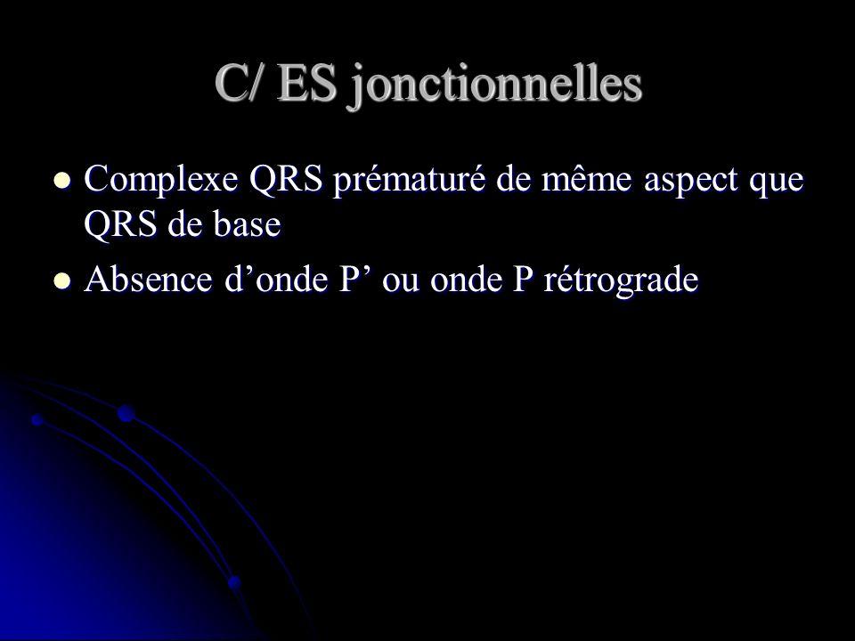 C/ ES jonctionnelles Complexe QRS prématuré de même aspect que QRS de base Complexe QRS prématuré de même aspect que QRS de base Absence donde P ou on