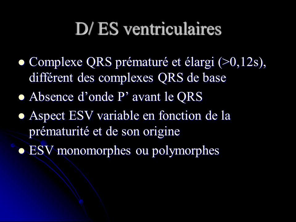 D/ ES ventriculaires Complexe QRS prématuré et élargi (>0,12s), différent des complexes QRS de base Complexe QRS prématuré et élargi (>0,12s), différe
