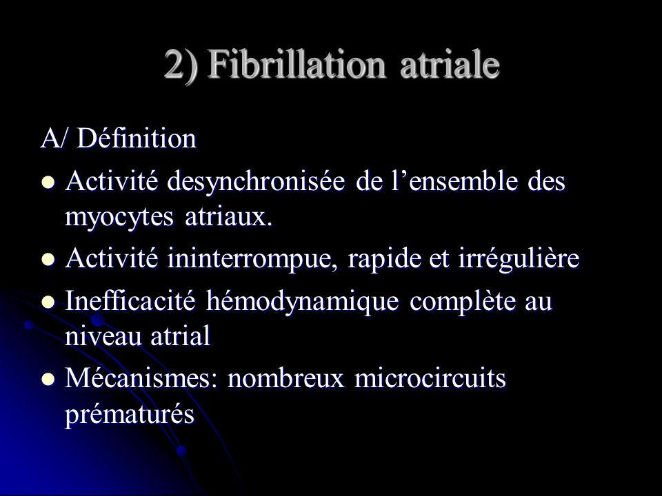 2) Fibrillation atriale A/ Définition Activité desynchronisée de lensemble des myocytes atriaux. Activité desynchronisée de lensemble des myocytes atr