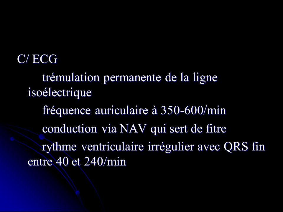 C/ ECG trémulation permanente de la ligne isoélectrique trémulation permanente de la ligne isoélectrique fréquence auriculaire à 350-600/min fréquence