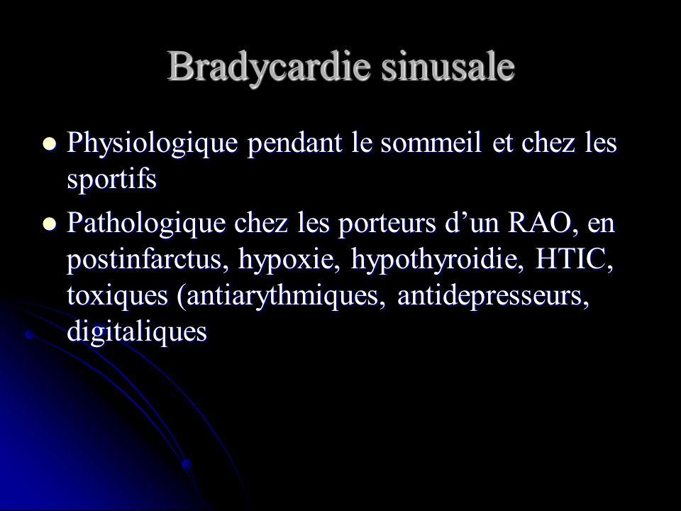 Bradycardie sinusale Physiologique pendant le sommeil et chez les sportifs Physiologique pendant le sommeil et chez les sportifs Pathologique chez les