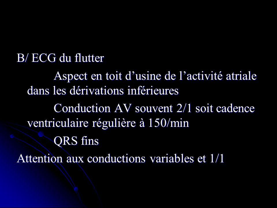 B/ ECG du flutter Aspect en toit dusine de lactivité atriale dans les dérivations inférieures Aspect en toit dusine de lactivité atriale dans les déri