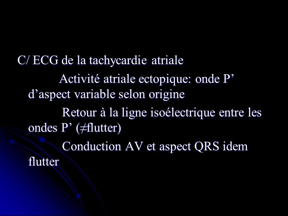 C/ ECG de la tachycardie atriale Activité atriale ectopique: onde P daspect variable selon origine Activité atriale ectopique: onde P daspect variable