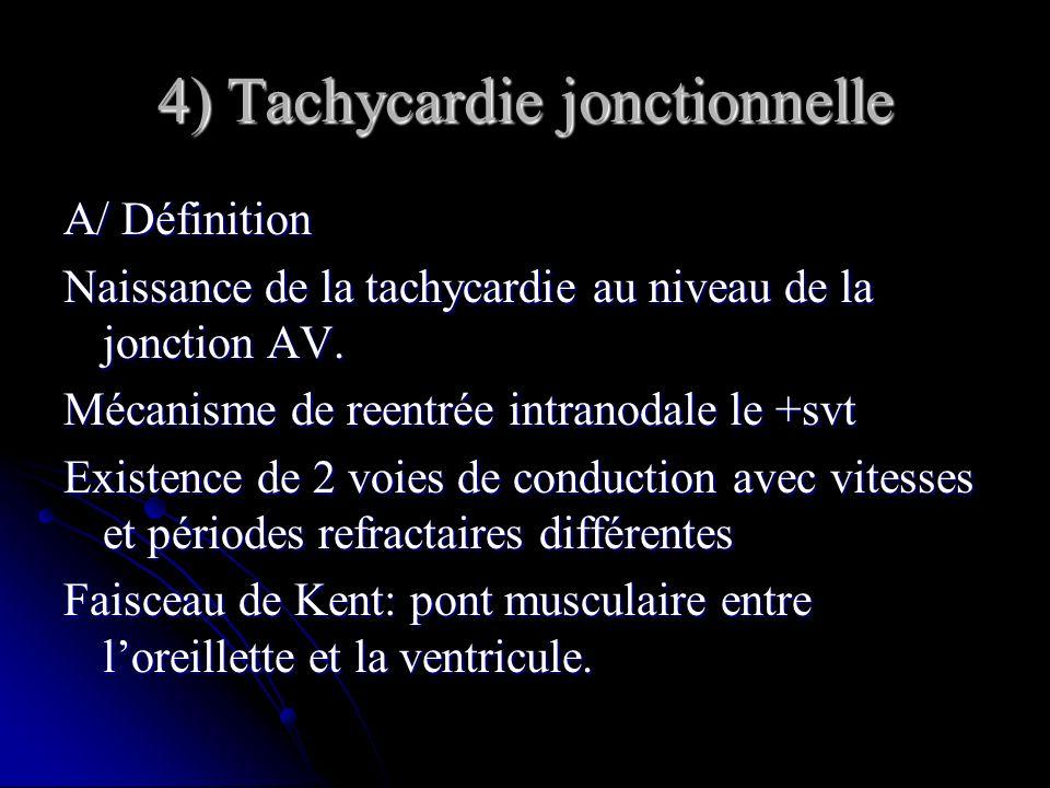 4) Tachycardie jonctionnelle A/ Définition Naissance de la tachycardie au niveau de la jonction AV. Mécanisme de reentrée intranodale le +svt Existenc