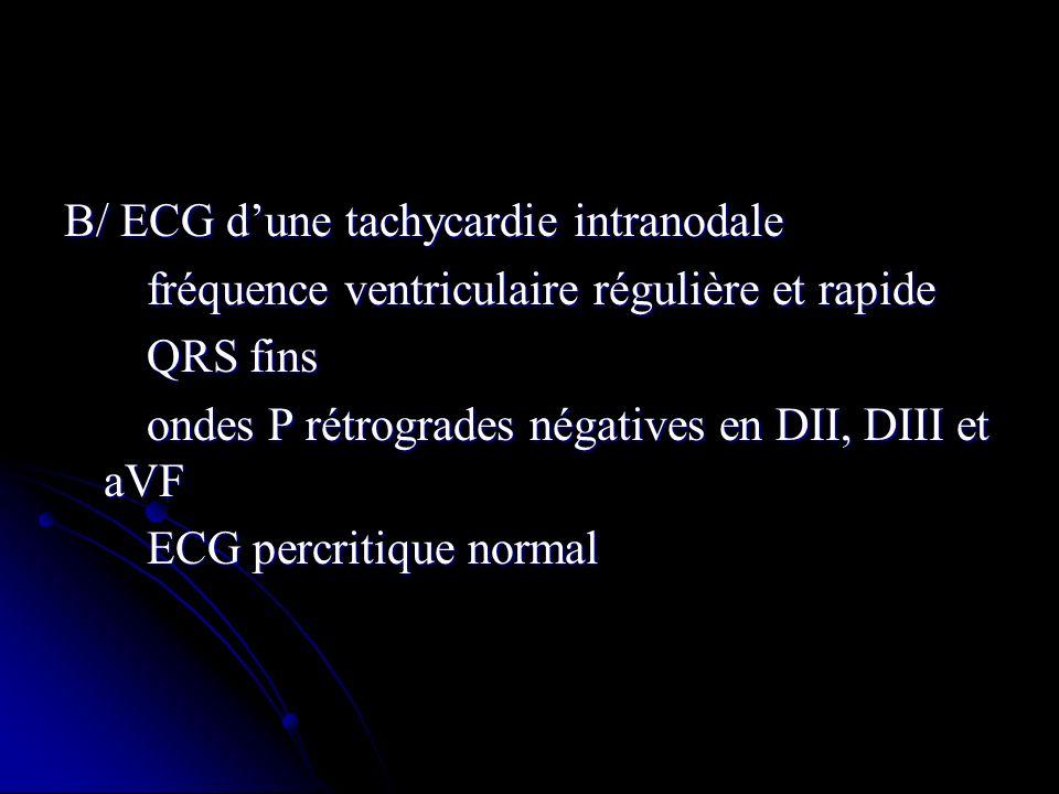 B/ ECG dune tachycardie intranodale fréquence ventriculaire régulière et rapide fréquence ventriculaire régulière et rapide QRS fins QRS fins ondes P