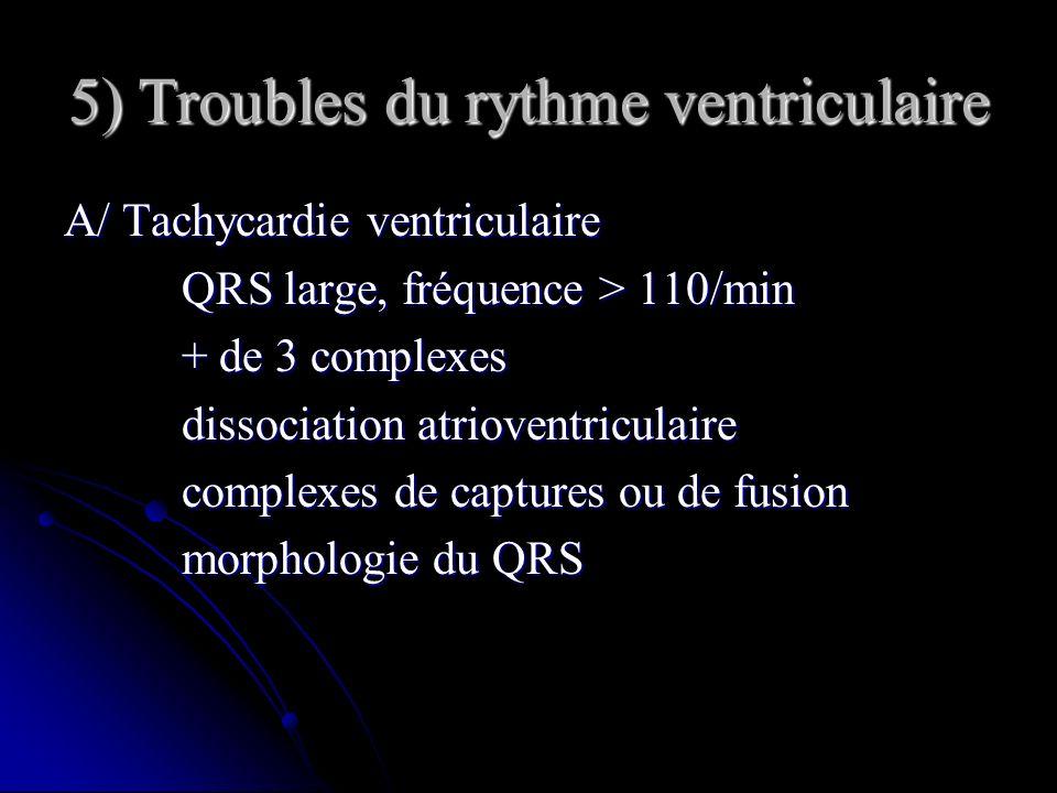 5) Troubles du rythme ventriculaire A/ Tachycardie ventriculaire QRS large, fréquence > 110/min QRS large, fréquence > 110/min + de 3 complexes + de 3