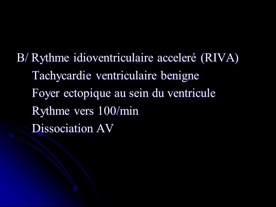 B/ Rythme idioventriculaire acceleré (RIVA) Tachycardie ventriculaire benigne Tachycardie ventriculaire benigne Foyer ectopique au sein du ventricule