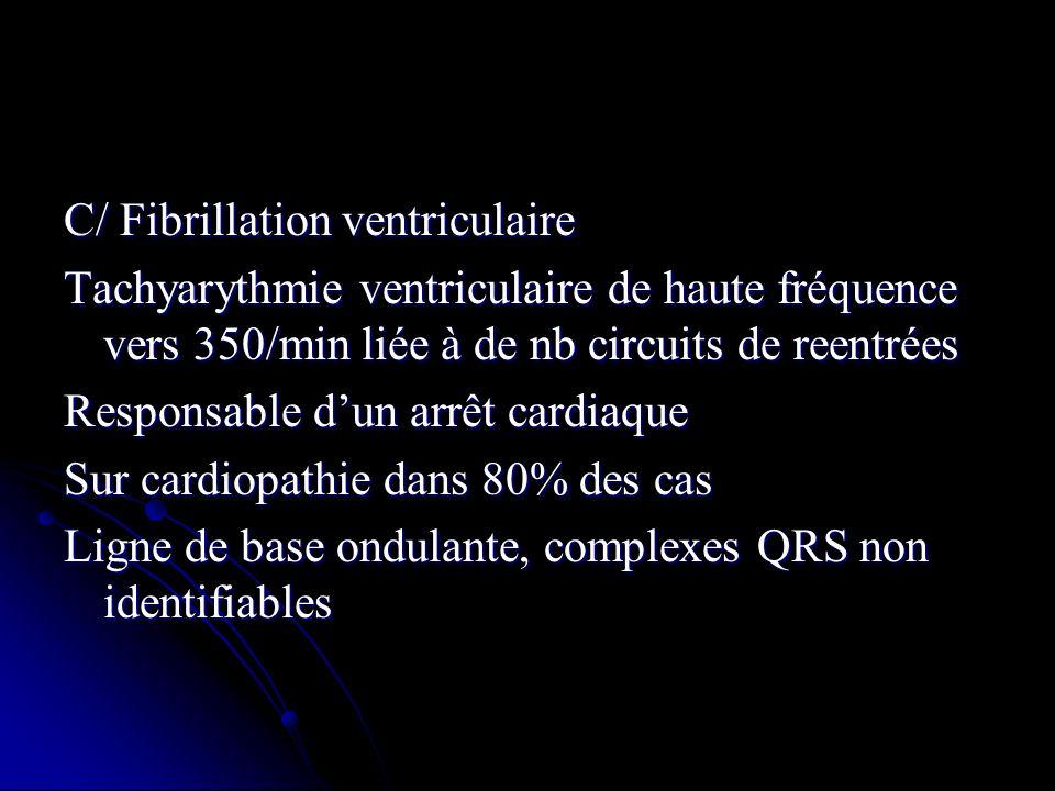 C/ Fibrillation ventriculaire Tachyarythmie ventriculaire de haute fréquence vers 350/min liée à de nb circuits de reentrées Responsable dun arrêt car