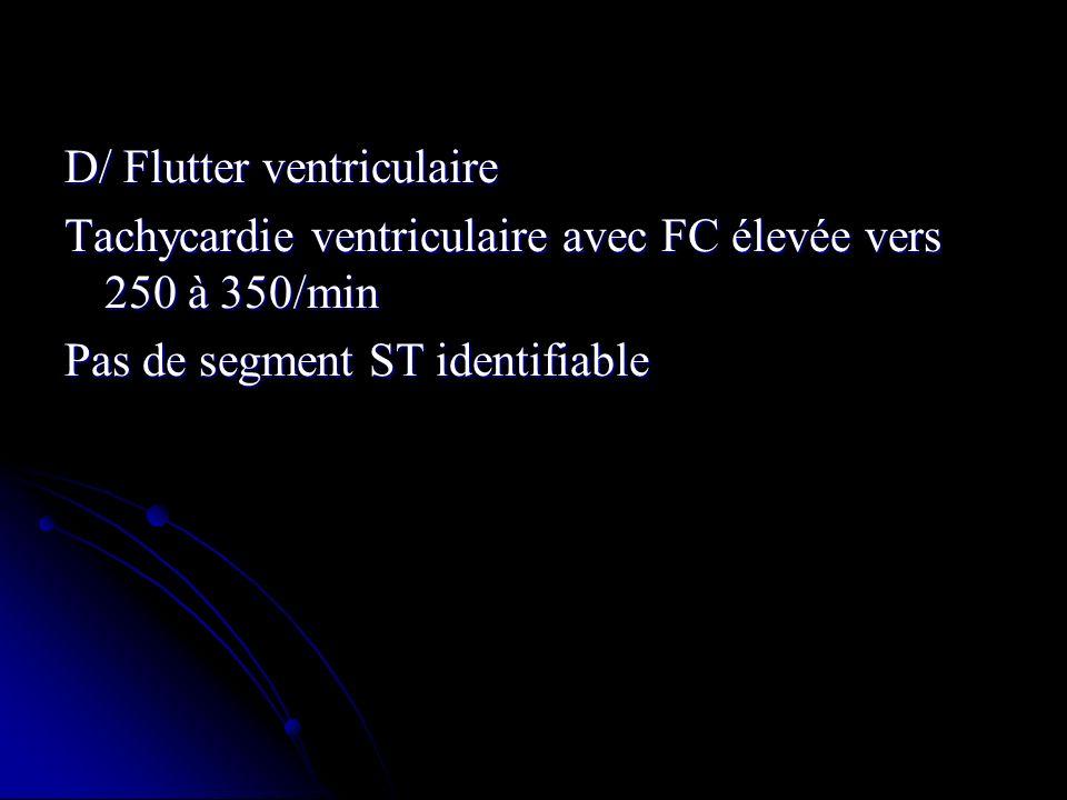 D/ Flutter ventriculaire Tachycardie ventriculaire avec FC élevée vers 250 à 350/min Pas de segment ST identifiable