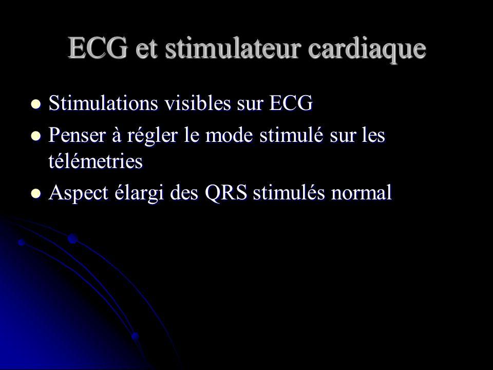 ECG et stimulateur cardiaque Stimulations visibles sur ECG Stimulations visibles sur ECG Penser à régler le mode stimulé sur les télémetries Penser à