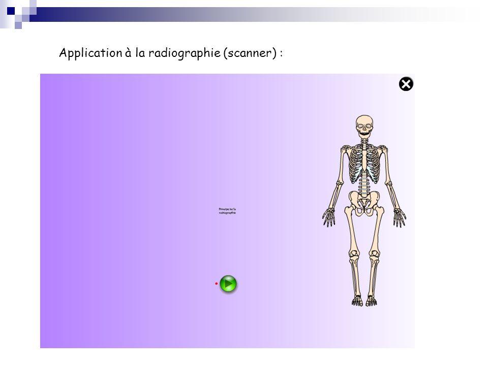 Application à la radiographie (scanner) :