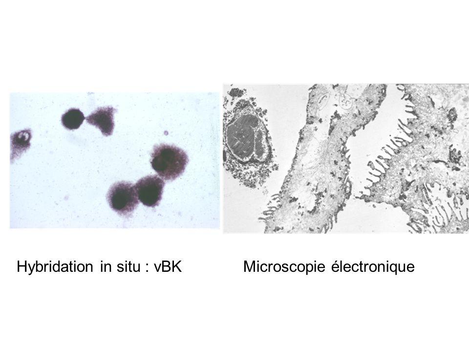 Hybridation in situ : vBKMicroscopie électronique