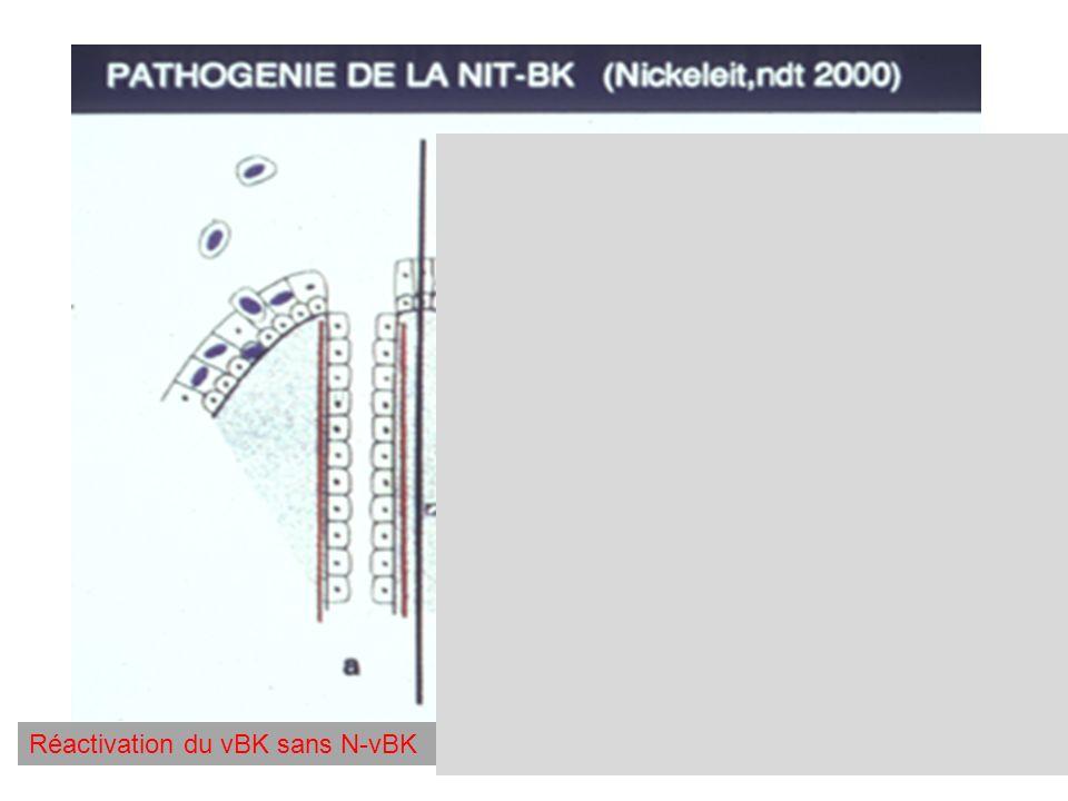 Réactivation du vBK sans N-vBK Réactivation du vBK avec N-vBK Rôle de lalloréactivité des cellules tubulaires rénales dans la réactivation locale de variants gènomiques du vBK