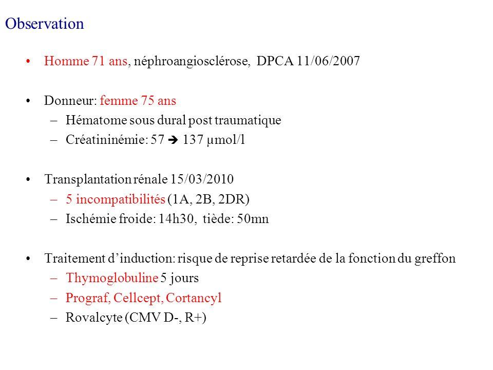 Observation Homme 71 ans, néphroangiosclérose, DPCA 11/06/2007 Donneur: femme 75 ans –Hématome sous dural post traumatique –Créatininémie: 57 137 µmol/l Transplantation rénale 15/03/2010 –5 incompatibilités (1A, 2B, 2DR) –Ischémie froide: 14h30, tiède: 50mn Traitement dinduction: risque de reprise retardée de la fonction du greffon –Thymoglobuline 5 jours –Prograf, Cellcept, Cortancyl –Rovalcyte (CMV D-, R+)