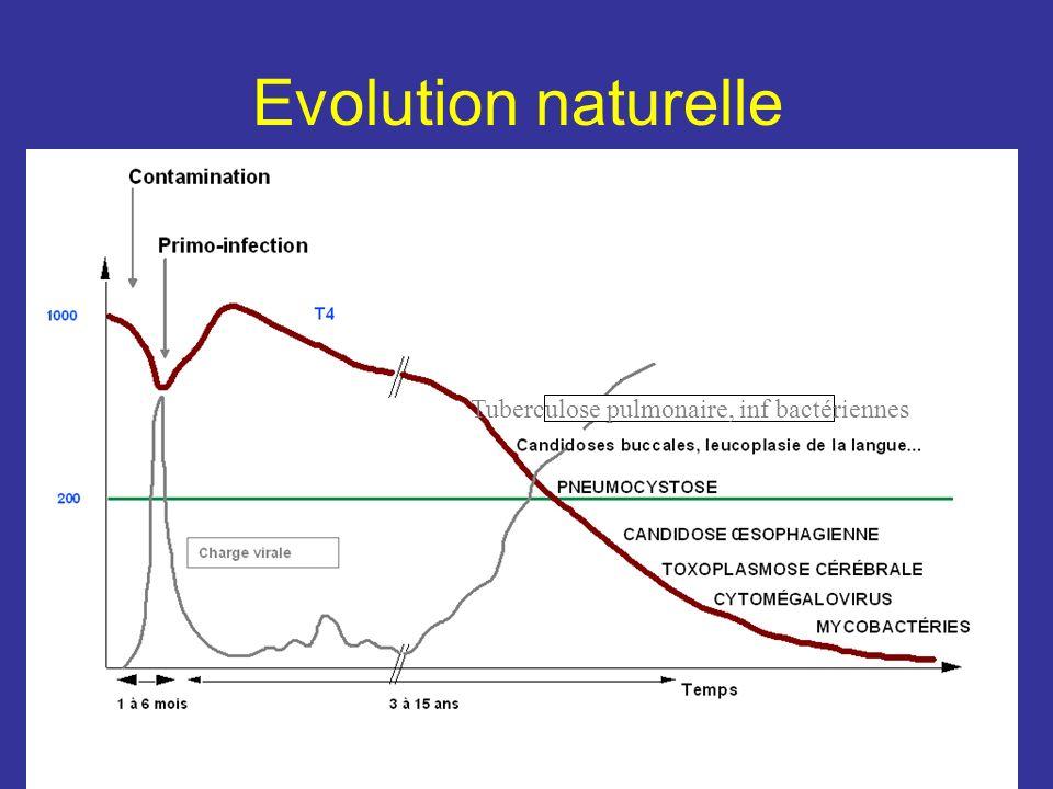 Tuberculose pulmonaire, inf bactériennes Evolution naturelle