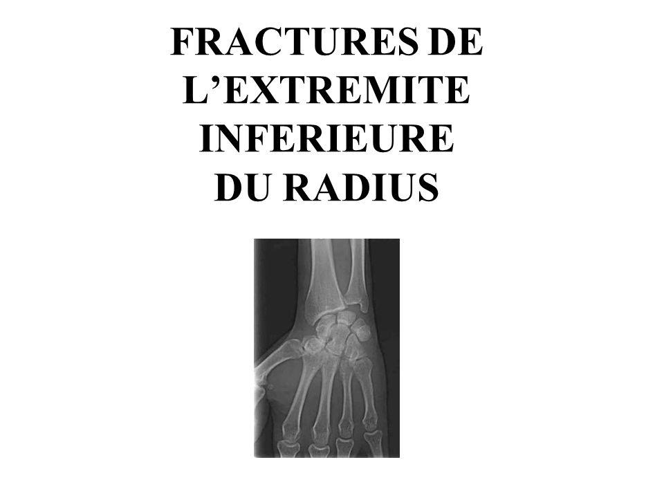 FRACTURES DE LEXTREMITE INFERIEURE DU RADIUS