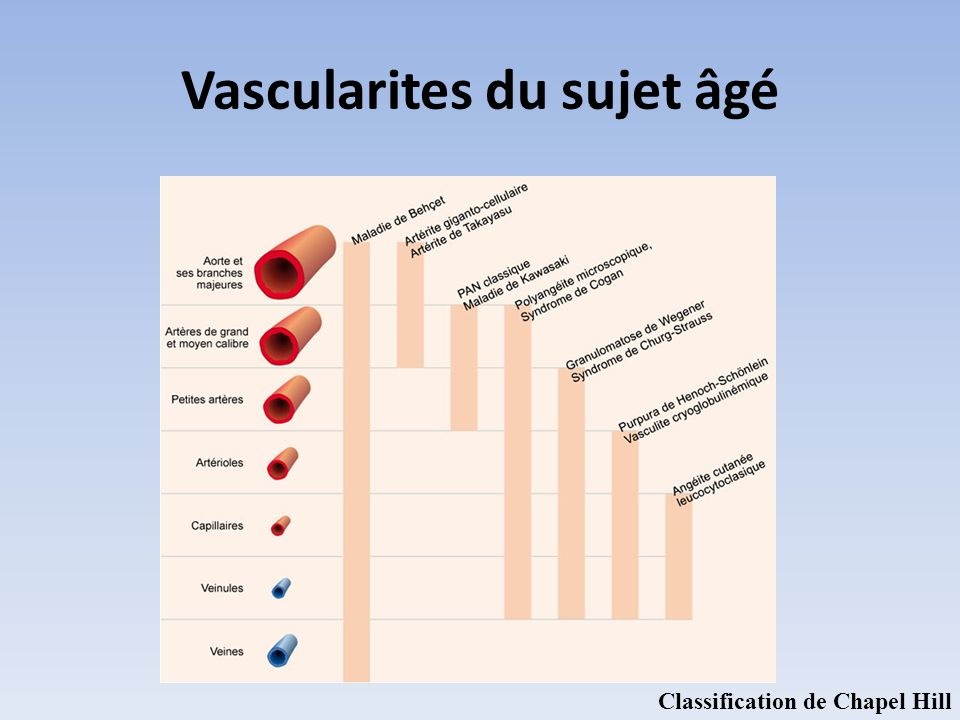 Vascularites du sujet âgé Classification de Chapel Hill