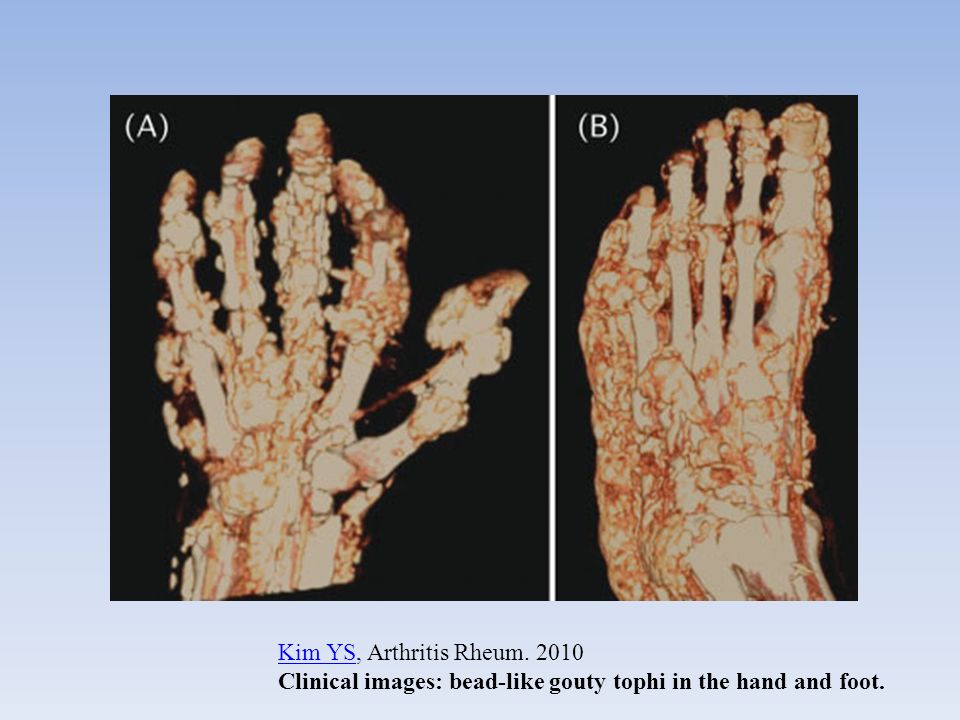 Kim YSKim YS, Arthritis Rheum. 2010 Clinical images: bead-like gouty tophi in the hand and foot.