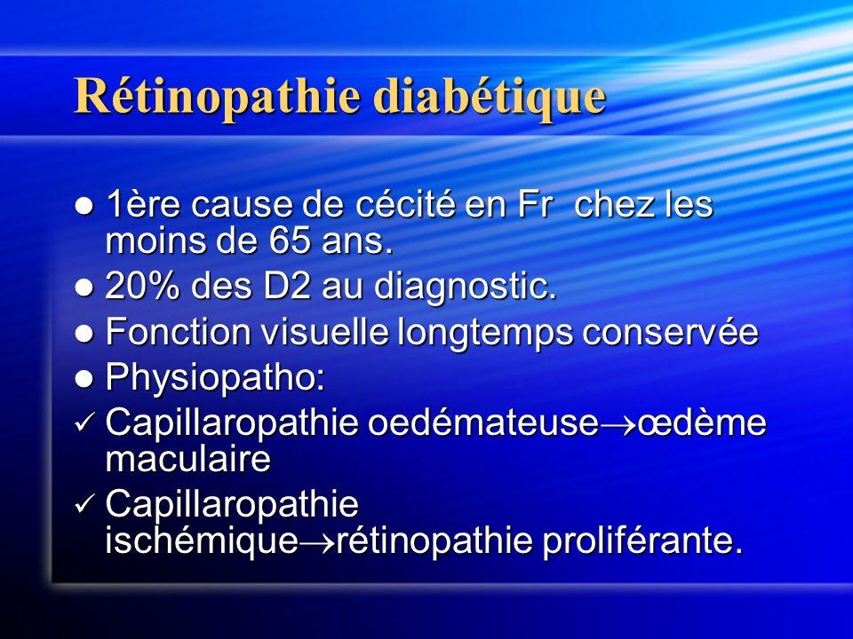 Rétinopathie diabétique 1ère cause de cécité en Fr chez les moins de 65 ans. 1ère cause de cécité en Fr chez les moins de 65 ans. 20% des D2 au diagno
