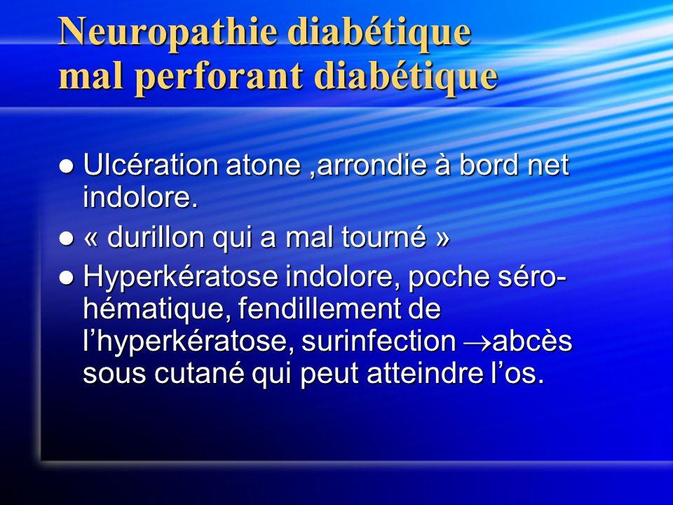 Neuropathie diabétique mal perforant diabétique Ulcération atone,arrondie à bord net indolore. Ulcération atone,arrondie à bord net indolore. « durill
